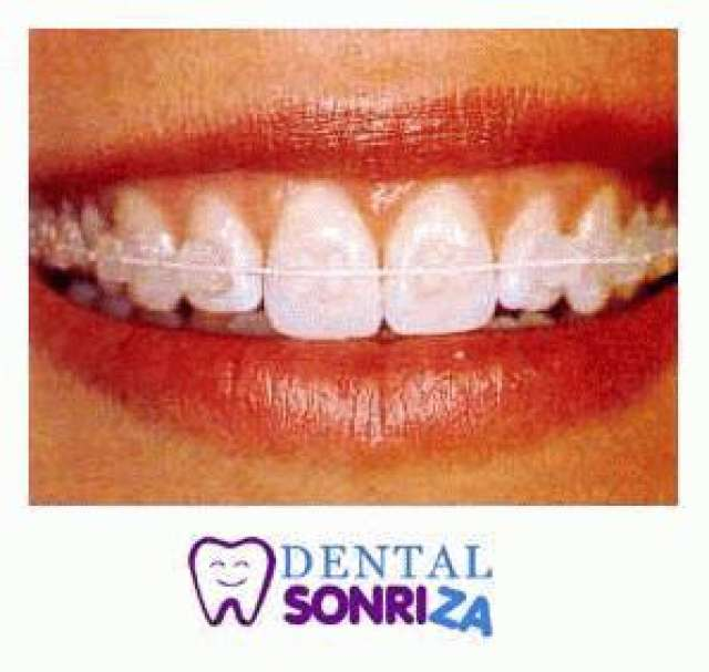 Clinica Dental Los Shyris Quito Clinica Los Shyris